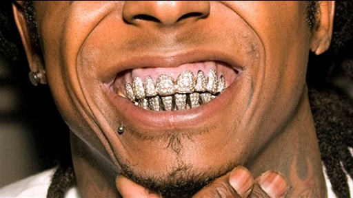Can Lil Wayne Bring His Teeth to Prison  slatecom
